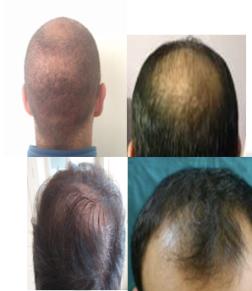 chierica-trapianti-capelli